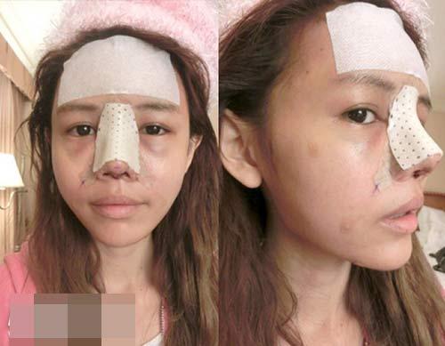 Cận cảnh mũi biến đổi từng ngày sau khi nâng - 3