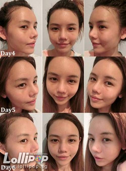 Cận cảnh mũi biến đổi từng ngày sau khi nâng - 7